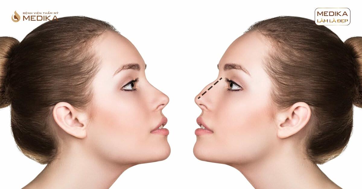 Có phải trường hợp nào cũng nên nâng mũi sụn tự thân?