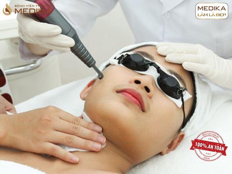 Điều trị sẹo rỗ bằng Laser có đau không ở bệnh viện thẩm mỹ MEDIKA?