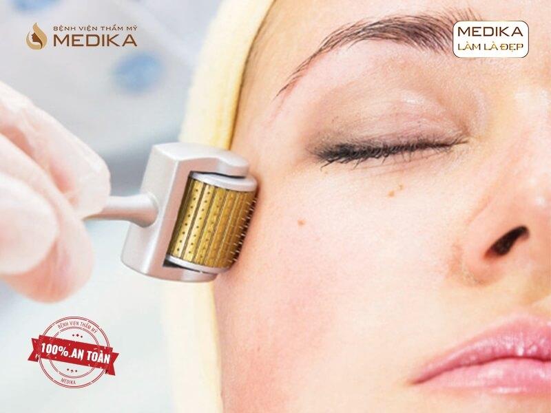 Hướng dẫn cách dưỡng da sau lăn kim với những lưu ý quan trọng ở MEDIKA.vn