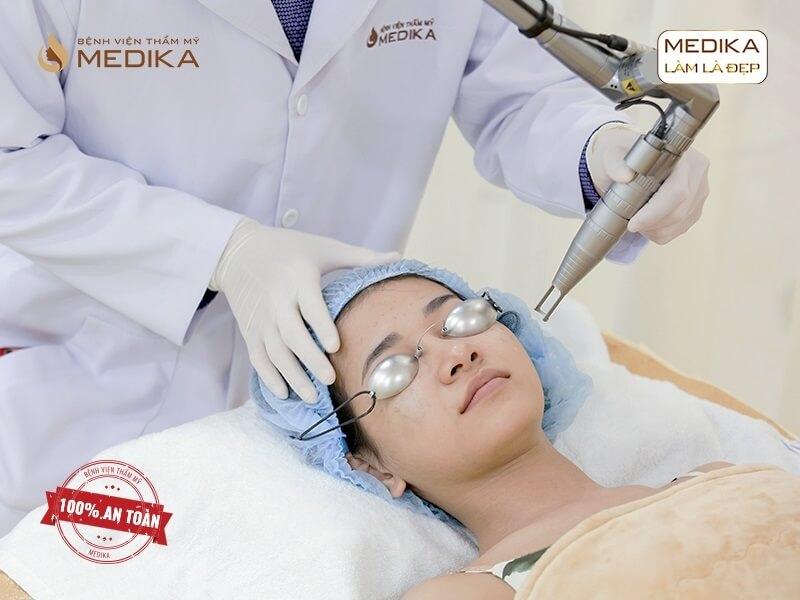 Kinh nghiệm điều trị tàn nhang tận gốc ở  bệnh viện thẩm mỹ MEDIKA
