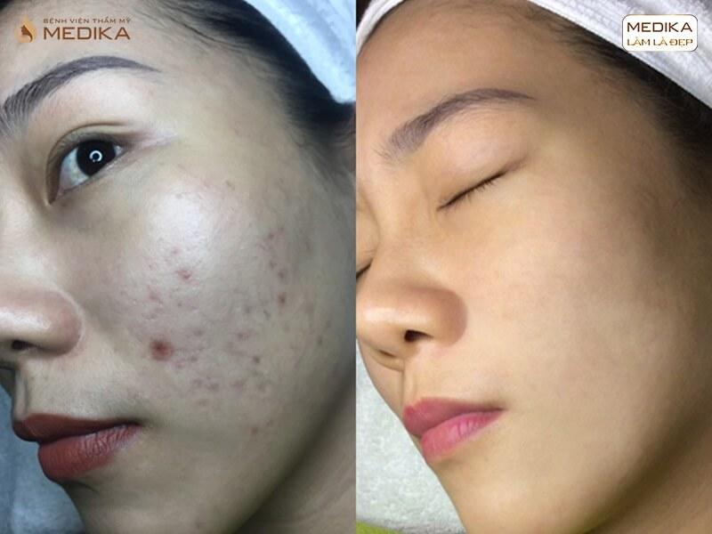 Làn da căng bóng, hết sạch sẹo mụn với phương pháp lăn kim tế bào gốc ở MEDIKA.vn
