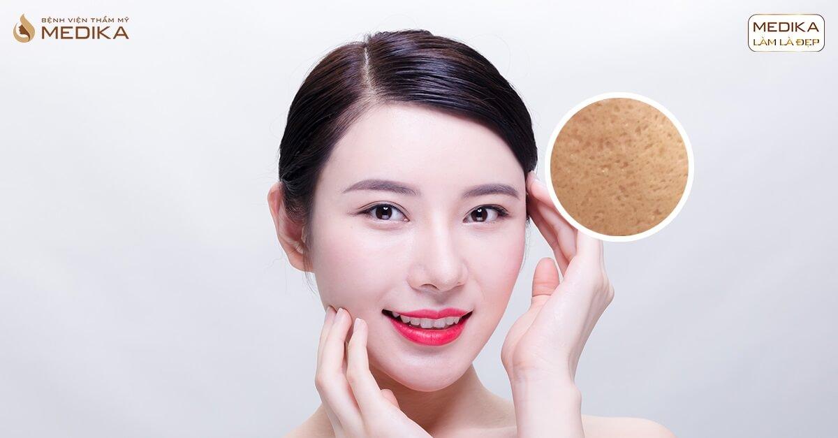 Làn da căng bóng, hết sạch sẹo mụn với phương pháp lăn kim tế bào gốc tại MEDIKA.vn
