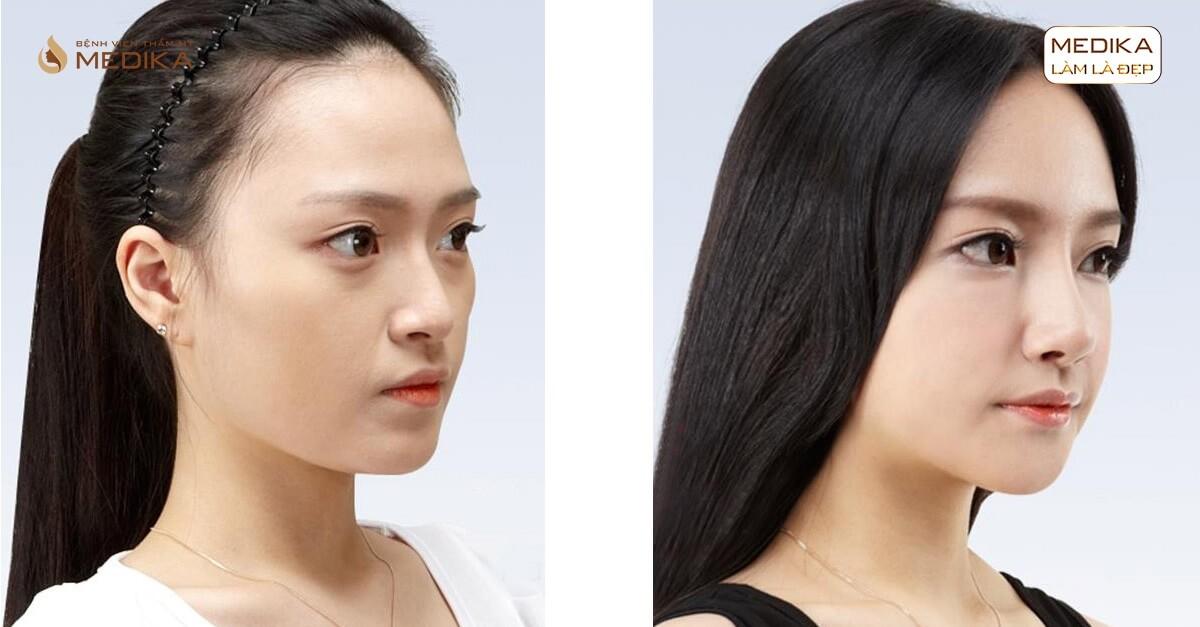 Loại sụn nào được đánh giá là cao cấp khi nâng mũi sụn tự thân?