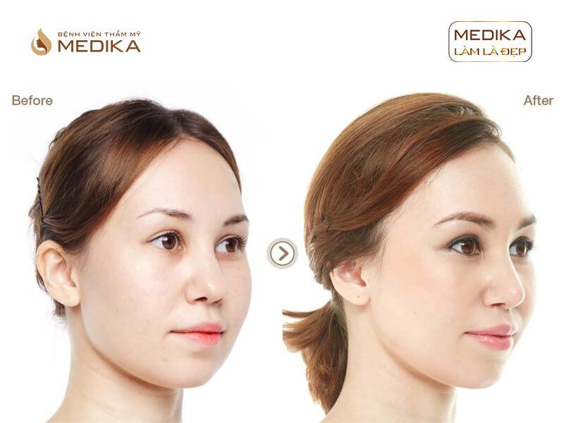 Nâng mũi bọc sụn S Line - Giải pháp nâng mũi được ưa chuộng tại MEDIKA.vn