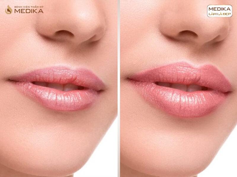 Rủi ro ít ai biết khi thực hiện tiêm Filler môi sai cách ở MEDIKA.vn