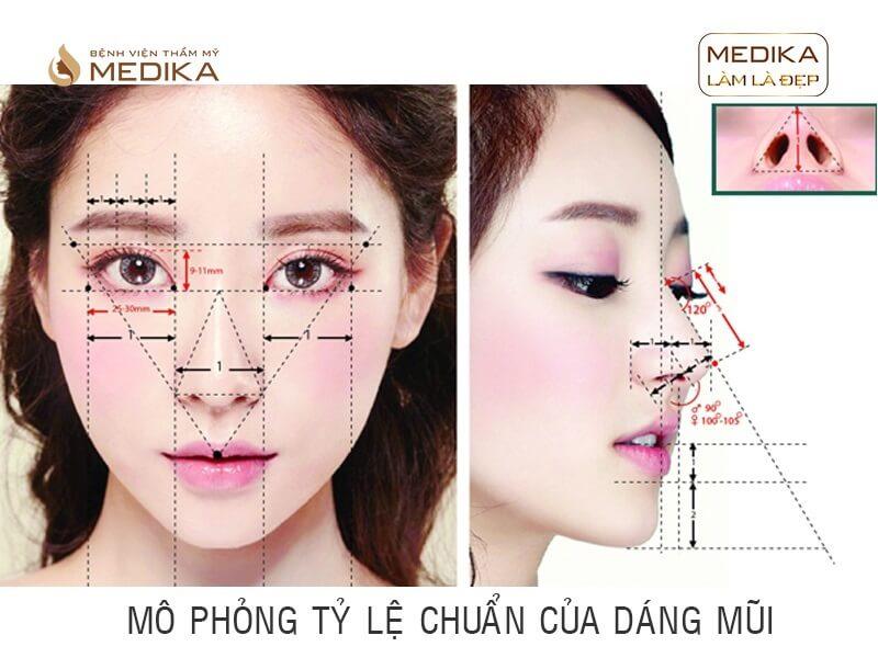 Thực hư những tin đồn về phương pháp nâng mũi 3D S line tại MEDIKA.vn