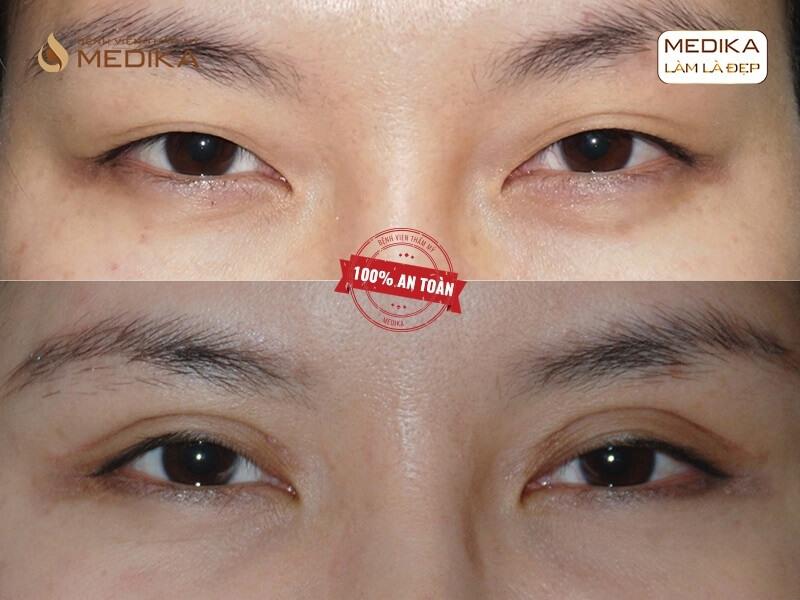 Bấm mí mắt bị hỏng phục hồi bằng cách nào MEDIKA.vn?