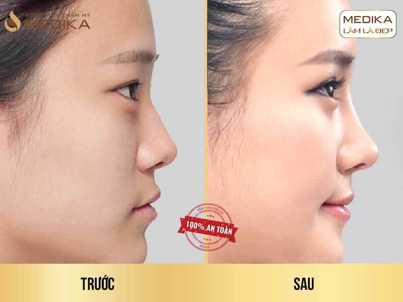 Bạn đã biết về những loại sụn được sử dụng trong nâng mũi sụn tự thân? - MEDIKA.vn