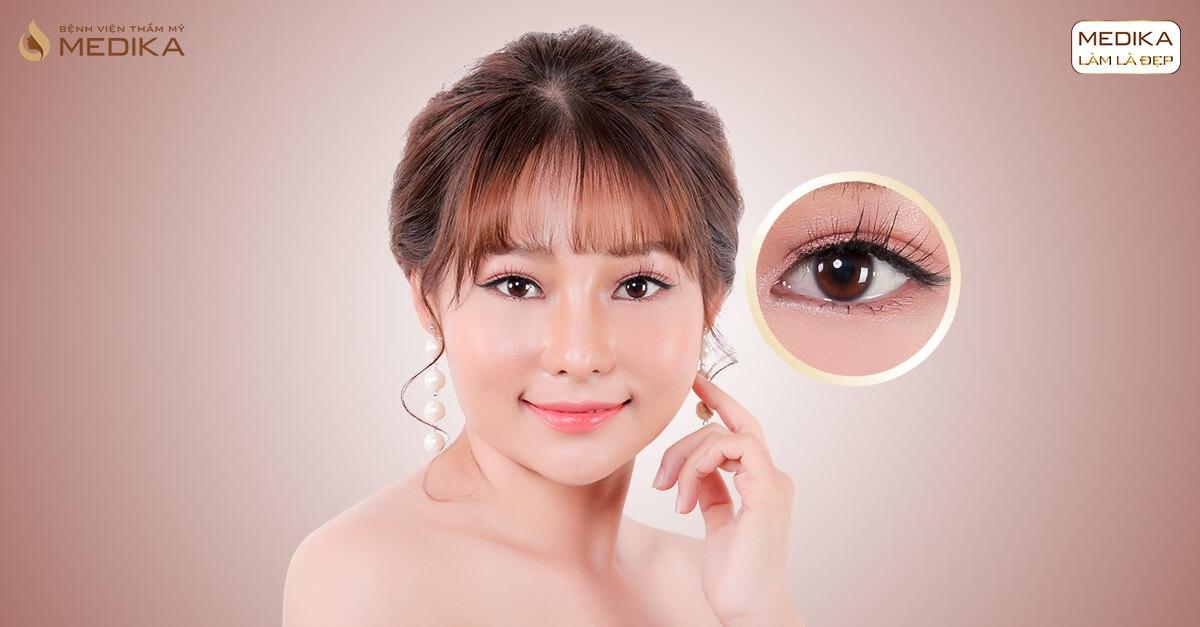 Bật mí kinh nghiệm chăm sóc sau cắt mí mắt hiệu quả - Bệnh viện thẩm mỹ MEDIKA