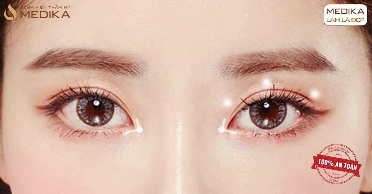Bí quyết thực hiện bấm mí mắt Hàn Quốc thành công - Bệnh viện thẩm mỹ MEDIKA