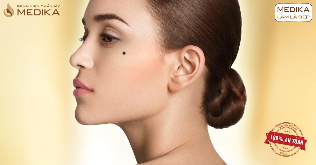 Cách chăm sóc da sau khi xóa nốt ruồi bằng Laser để tránh để lại sẹo Bệnh viện thẩm mỹ MEDIKA
