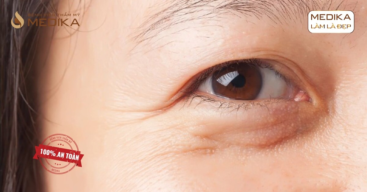 Cần chuẩn bị những gì khi thực hiện lấy mỡ mí mắt trên? - Bệnh viện thẩm mỹ MEDIKA