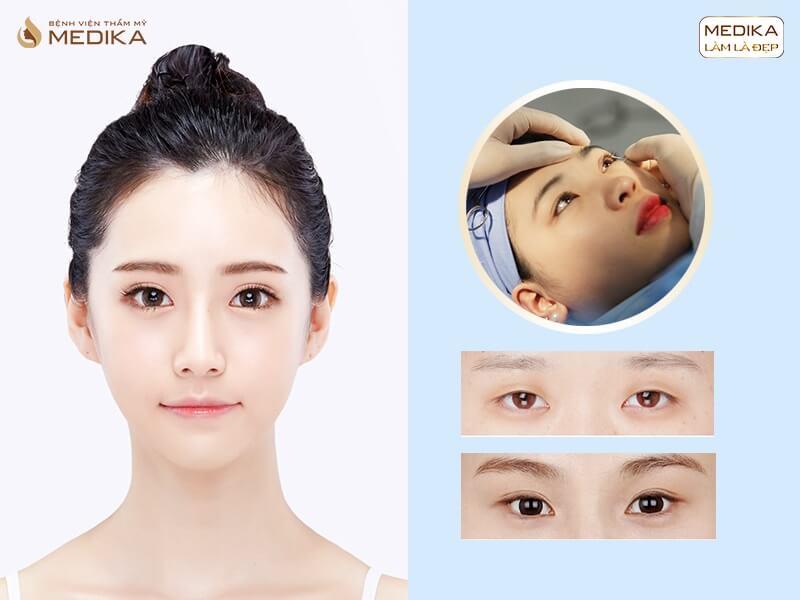 Cắt mí mắt Hàn Quốc bị hỏng có sửa được không MEDIKA.vn?