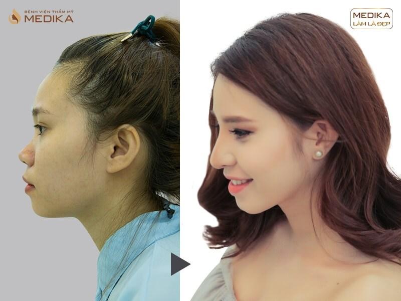 Chia sẻ những dáng mũi nâng mũi cấu trúc đang được giới trẻ ưa chuộng MEDIKA.vn