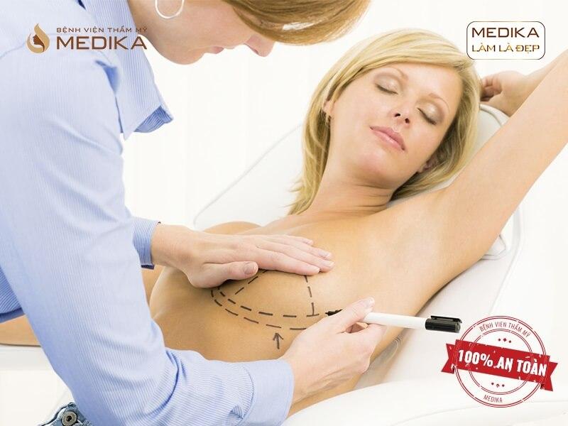 Dịch vụ phẫu thuật ngực hỏng ở bệnh viện thẩm mỹ MEDIKA