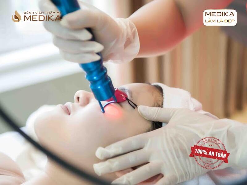 Điều trị tàn nhang bằng laser ở bệnh viện thẩm mỹ MEDIKA có gì khác?