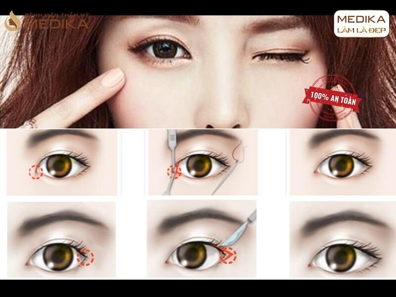 Mở rộng góc mắt trong cần chú ý gì để đôi mắt đẹp hơn? - MEDIKA.vn