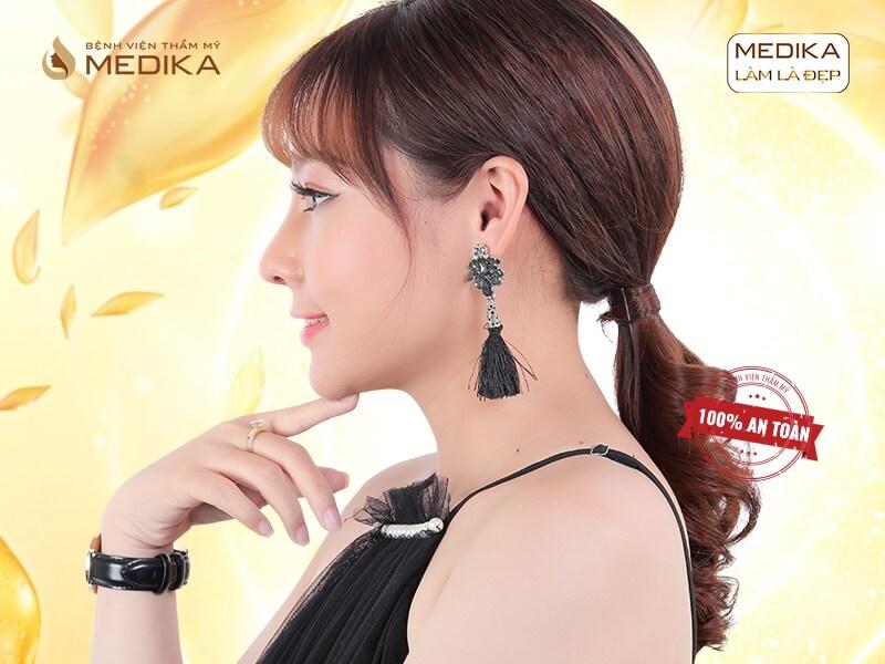 Nâng mũi bằng sụn tự thân và những lưu ý được chia sẻ từ chuyên gia MEDIKA.vn