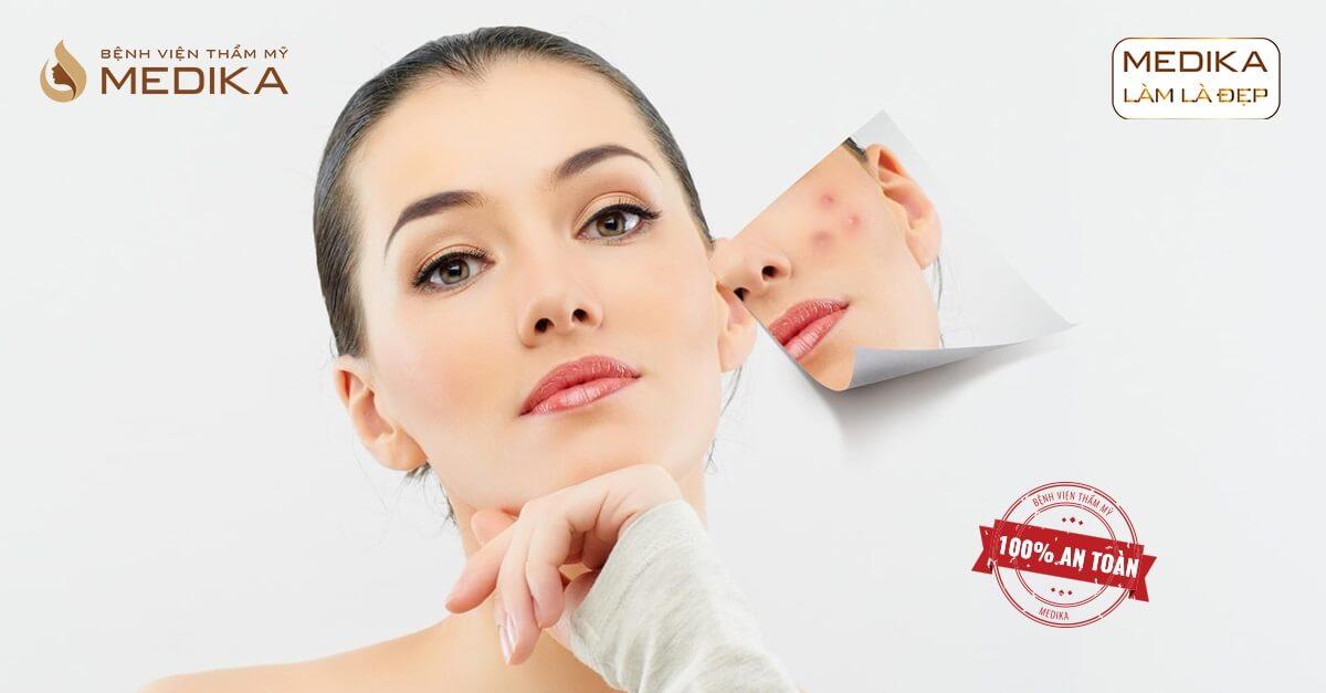 Sai lầm khi lăn kim tế bào gốc khiến da bị mọc mụn tại bệnh viện thẩm mỹ MEDIKA