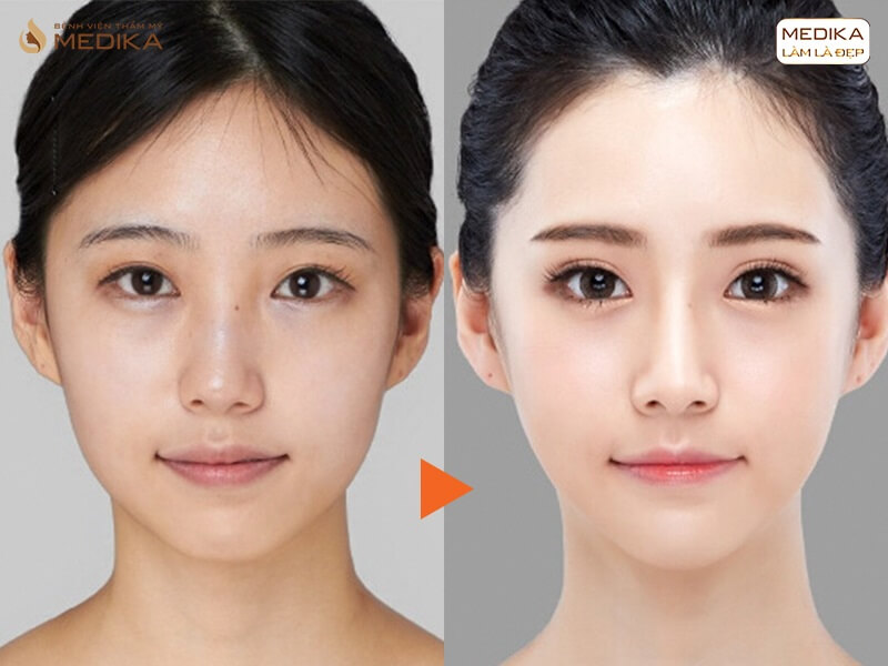 Bấm mí mắt Hàn Quốc có nguy hiểm không và những điều cần biết - MEDIKA.vn