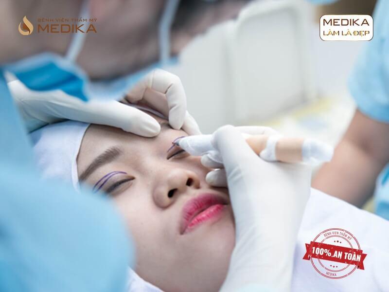 Biến chứng khi thực hiện mở rộng góc mắt trong sai cách - MEDIKA.vn