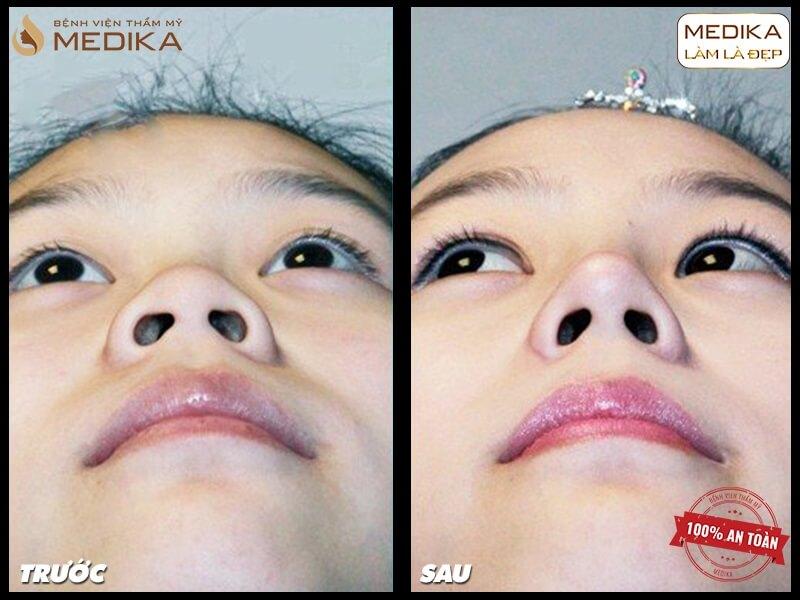 Các biến chứng thường gặp phải khi thu gọn cánh mũi sai cách - MEDIKA.vn