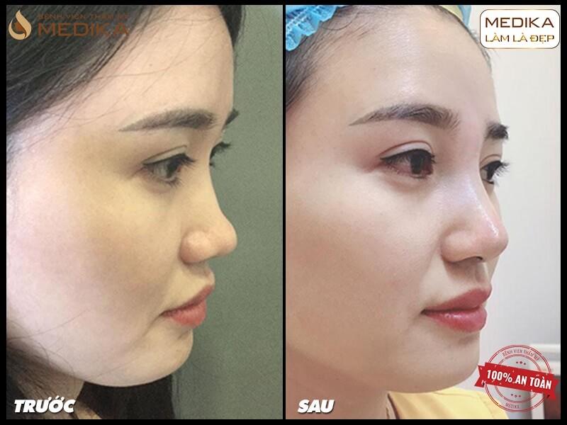 Cách phòng ngừa biến chứng khi nâng mũi sụn tự thân - MEDIKA.vn