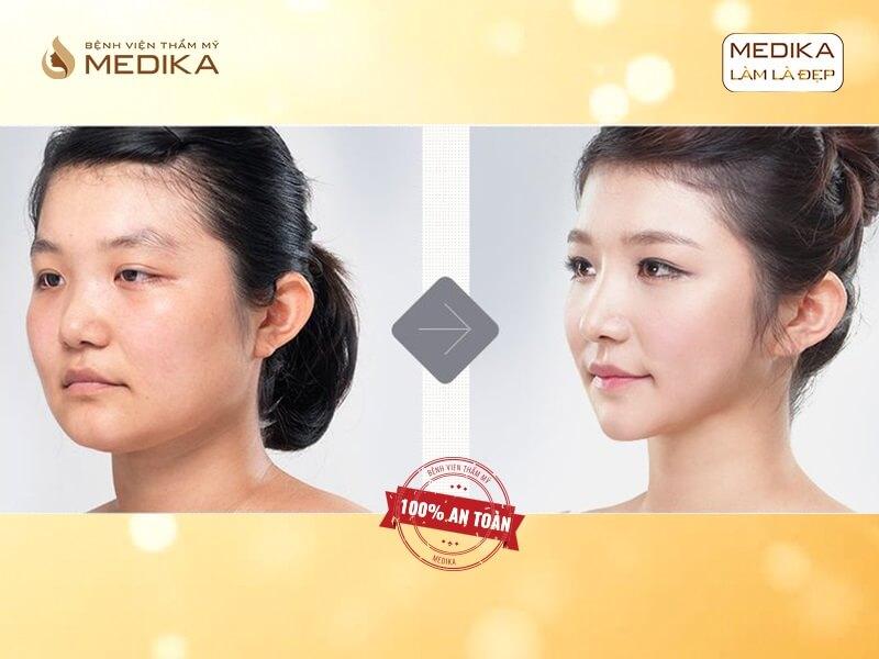 Chia sẻ những phương pháp nâng mũi được ưa chuộng nhất tại MEDIKA.vn