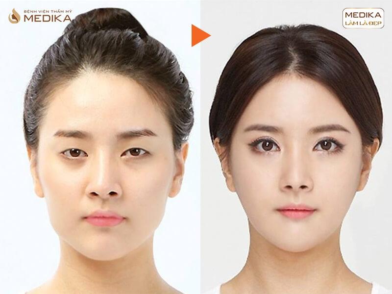 Có nên thực hiện cắt mắt 2 mí để cải thiện tình trạng sụp mí mắt - Bệnh viện thẩm mỹ MEDIKA
