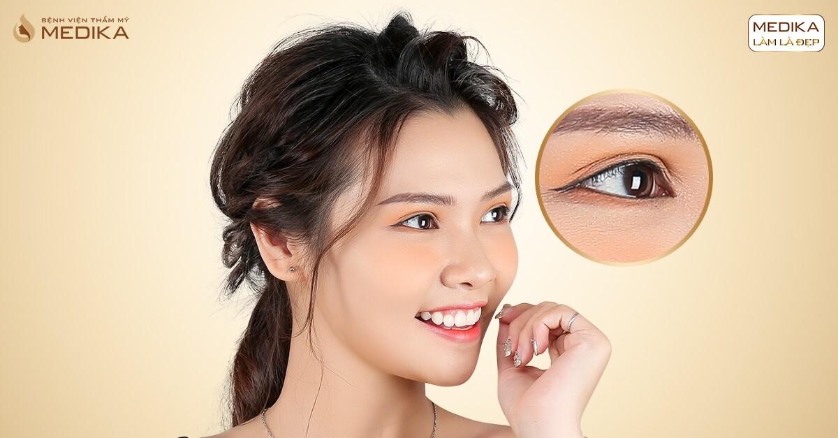 Có nên thực hiện cắt mắt 2 mí để cải thiện tình trạng sụp mí mắt - MEDIKA.vn