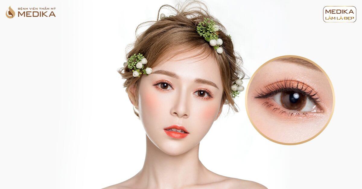 Giải đáp những hiểu lầm thường gặp về phương pháp cắt mắt 2 mí - MEDIKA.vn