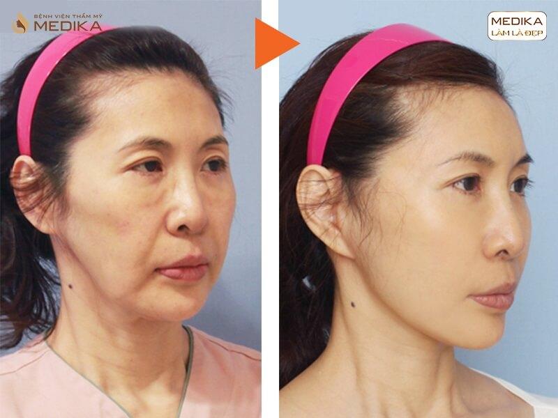 Lấy lại thanh xuân cho đôi mắt bằng phương pháp lấy mỡ mí mắt trên - MEDIKA.vn