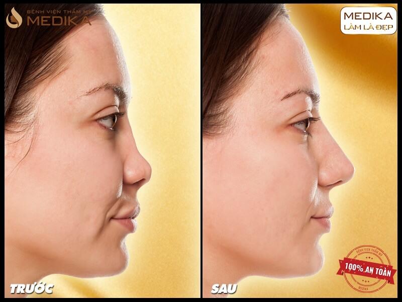 Nâng mũi bằng sụn tự thân có gì khác? - MEDIKA.vn