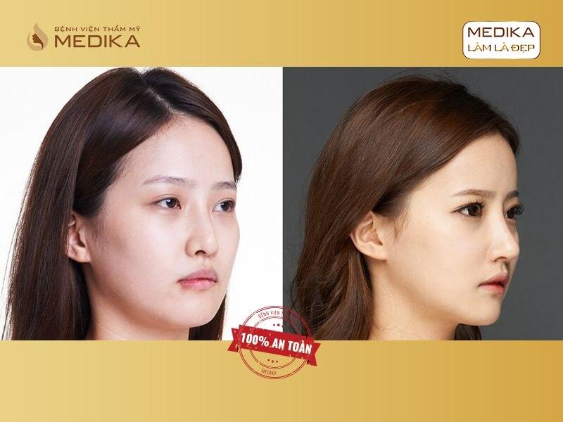 Nâng mũi bọc sụn - Giải pháp nâng mũi hiện đại cho phái đẹp - Bệnh viện thẩm mỹ MEDIKA