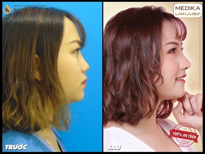 Phương pháp nâng mũi bằng sụn tự thân dưới góc nhìn chuyên gia - MEDIKA.vn