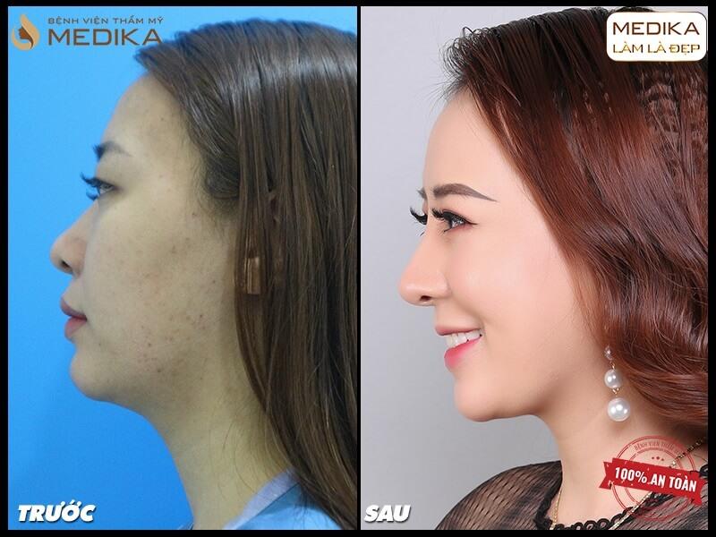 Phương pháp nâng mũi sụn tự thân dưới góc nhìn chuyên gia MEDIKA.vn