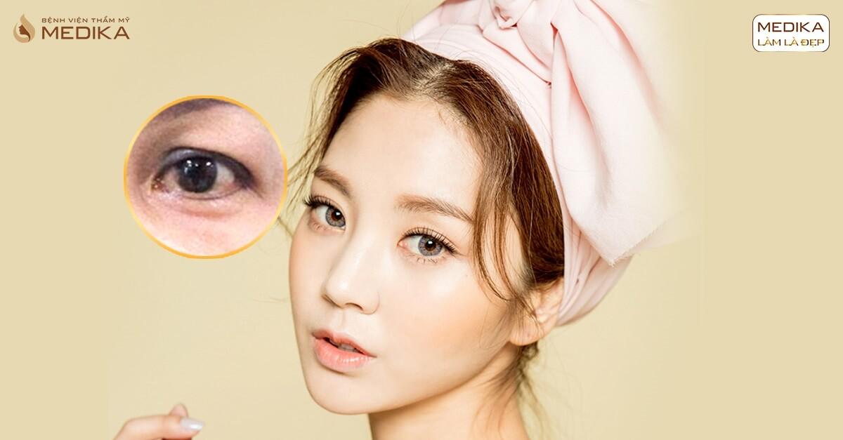 Sụp mí có nên phẫu thuật lấy mỡ mí mắt trên không? - MEDIKA.vn