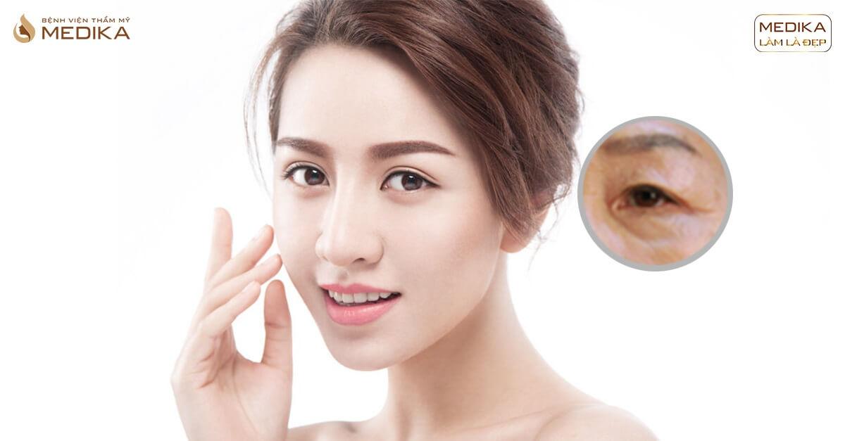 Cách lấy mỡ mí mắt hiệu quả bạn nên thử - Bệnh viện thẩm mỹ MEDIKA