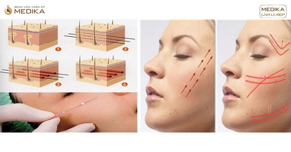 Công thức căng da mặt bạn không nên bỏ qua - Bệnh viện thẩm mỹ MEDIKA