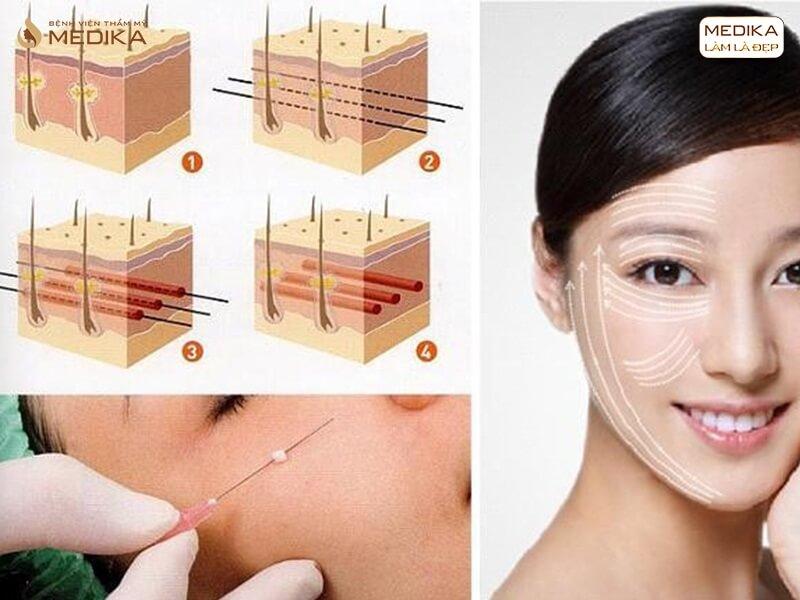 Công thức căng da mặt bạn không nên bỏ qua - MEDIKA.vn