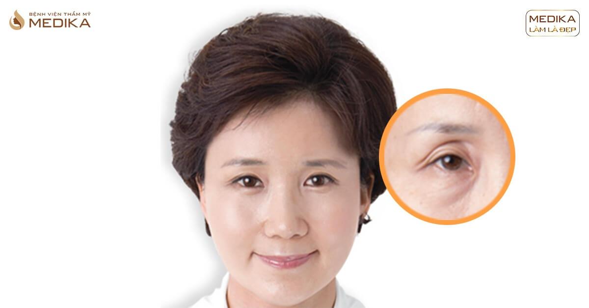 Đừng thực hiện phẫu thuật lấy mỡ mí mắt nếu bạn chưa đọc cảnh báo sau - Bệnh viện thẩm mỹ MEDIKA