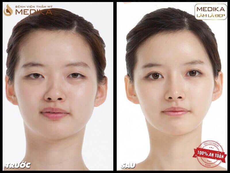 Giải pháp cắt mắt 2 mí phù hợp với những trường hợp khách hàng nào? - MEDIKA.vn