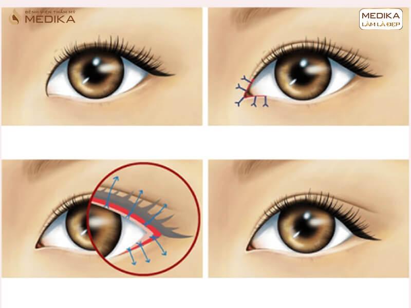 Hé lộ những điều ít ai biết về phương pháp mở rộng góc mắt trong - MEDIKA.vn