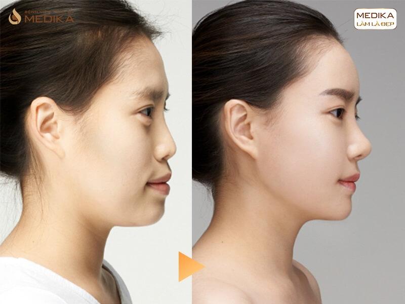 Khác nhau giữa nâng mũi bọc sụn và nâng mũi truyền thống - MEDIKA.vn