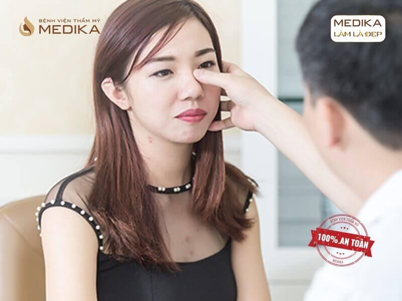 Nâng mũi sụn tự thân có dễ bị tụt sóng và chia sẻ từ chuyên gia? - MEDIKA.vn