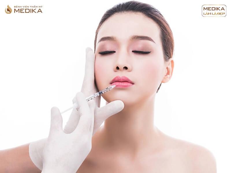 Các kiểu tiêm Filler môi đang được ưa chuộng nhất năm 2019 - MEDIKA.vn