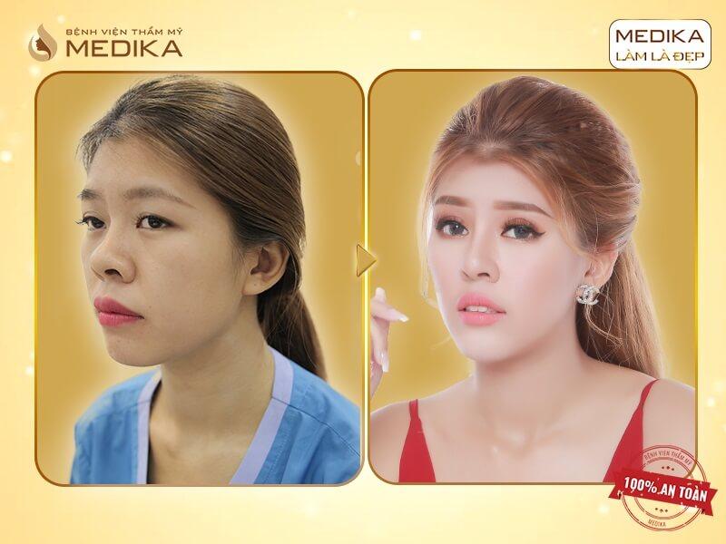 Cắt mắt 2 mí không phẫu thuật - Kĩ thuật cắt mí hiện đại hàng đầu - MEDIKA.vn