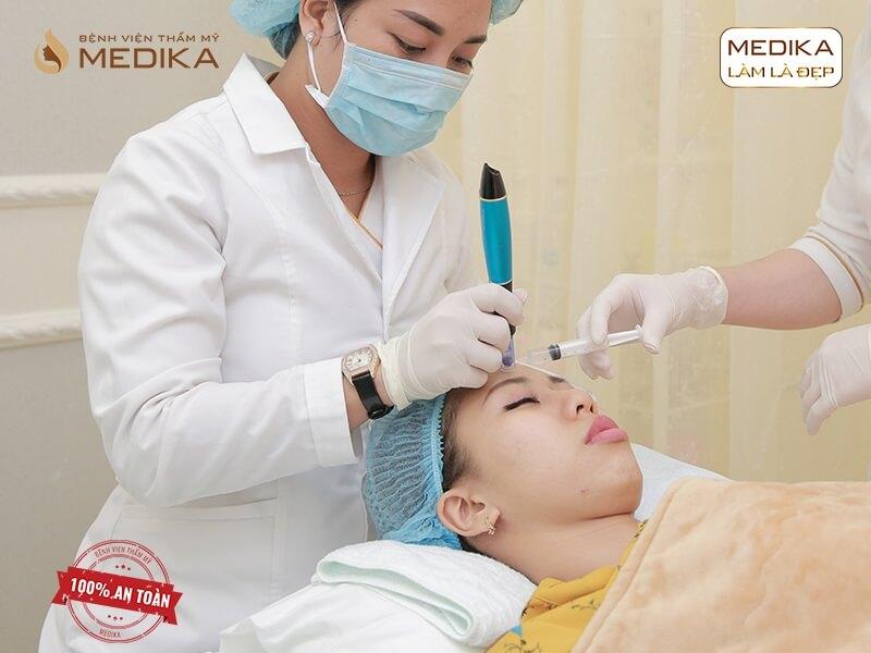 Công nghệ lăn kim cho làn da đẹp không tì vết - MEDIKA.vn