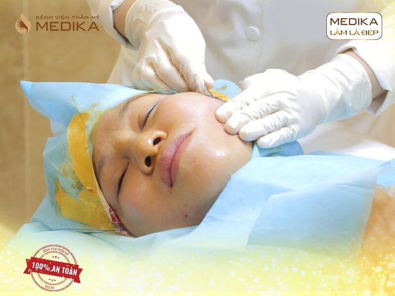 Tại sao căng da bằng chỉ lại được ưa chuộng trên thị trường - MEDIKA.vn