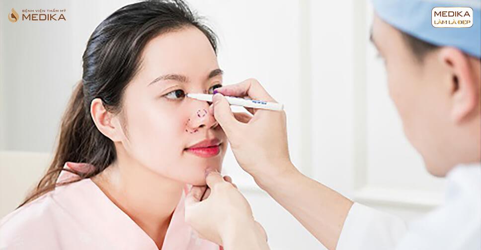 Có nên thực hiện phẫu thuật nâng mũi và cắt mí cùng một lúc? - Bệnh viện thẩm mỹ MEDIKA